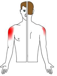 strålar i vänster arm