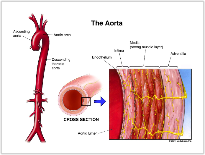 Aortic Health Aortic Conditions