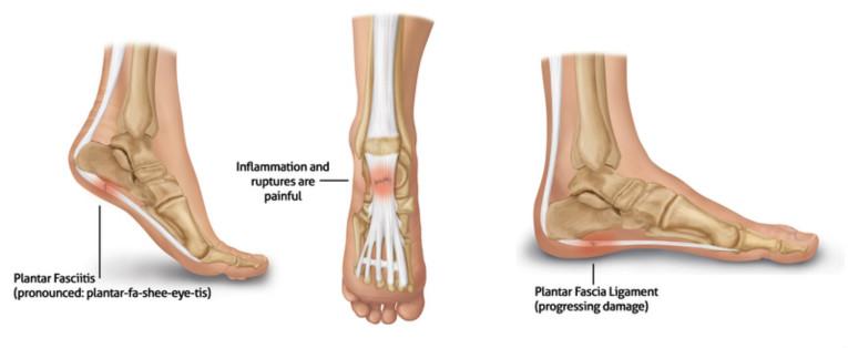 smerter oppe på foten
